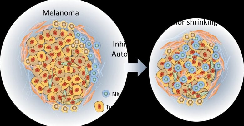 Tumor-associated bacteria hitches a ride to metastatic sites