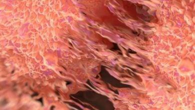 درمان هدفمند نانو برای سرطان پروستات - اخبار زیست فناوری