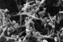 Study suggests colon cancer cells carry bacteria with them when they metastasize