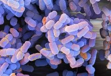 Photo of گردش موانع باکتریایی وابسته به تومور در نواحی متاستاتیک