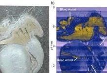 هدف قرار دادن سلول های سرطانی با اندازه گیری جریان های الکتریکی_اخبار زیست فناوری