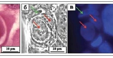 Photo of cannibalism سلولی در رشد سلولهای سرطانی