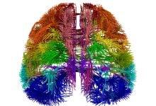 Photo of نقشه سلولی جدید مغز؛ ارتباط دهنده بیماریهای مغزی با انواع خاصی از سلولها