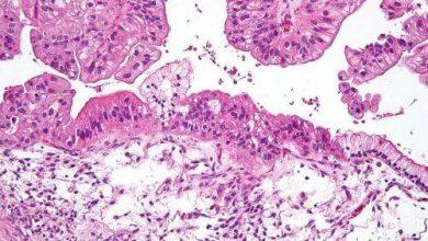 Photo of کشف مکانیسمهای ملکولی مربوط به پیشرفت سرطان تخمدان