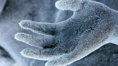 بافت سلولی نباید یخ بزند! - اخبار زیست فناوری
