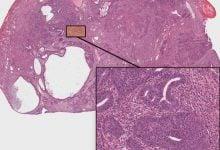 Photo of چرا سرطان بیضه به شیمیدرمانی، خوب پاسخ میدهد؟