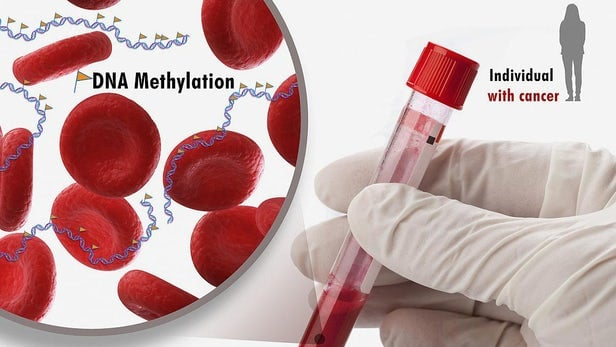 آزمایش خون ژنومی پیش بینی میزان بقا پس از عمل برای نارسایی قلبی پیشرفته را نشان می دهد_اخبار زیست فناوری