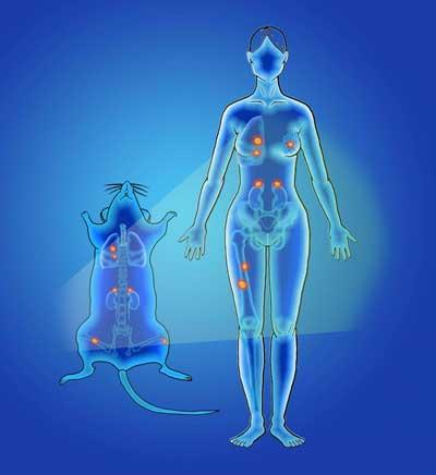 تشخیص سرطان با استفاده از نانوذرات سریعتر، دقیق تر_اخبار زیست فناوری