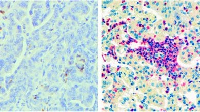 Photo of سلول های ایمنی که به  از بین بردن تومور کمک می کنند