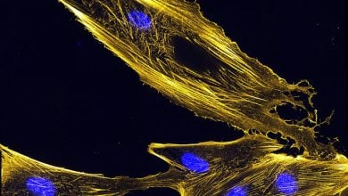 میکروسکوپ زنده سلولی چگونگی حرکت سلولی را نشان میدهد_اخبار زیست فناوری