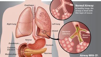 Photo of ژن سرطان نقش کلیدی در عفونت های ریوی فیبروز کیستیک دارد