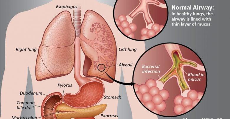 ژن سرطان نقش کلیدی در عفونت های ریوی فیبروز کیستیک دارد_اخبار زیست فناوری