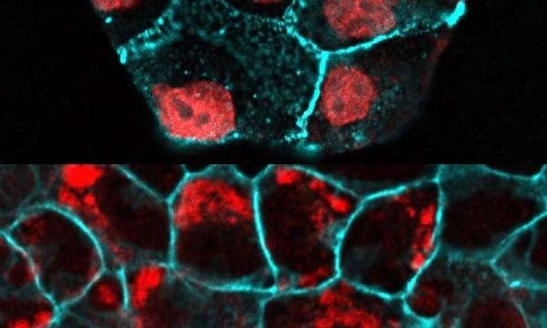 مطالعه حاضر نشان میدهد که چگونه سلولهای اپیتلیال با برقراری ثبات بین تقسیم و مرگ سلولی سبب ثابت ماندن تعداد سلولها میشوند.-زیست فن