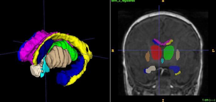 تصویربرداری از مغز نوزادان زودرس جهت یافتن بیومارکرهایی برای اختلالات شناختی-رفتاری