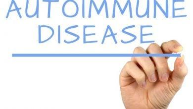 Photo of زمان  بر شدت بیماری های خود ایمنی تأثیر می گذارد