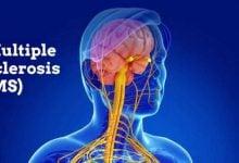 استروژن و درمان MS-زیست فن