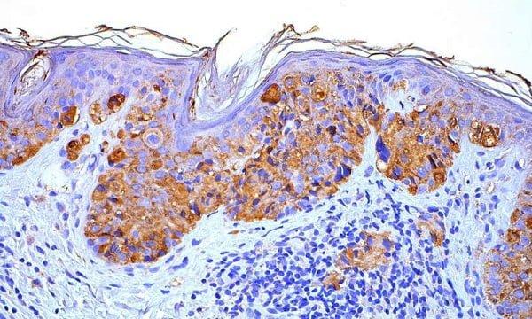 درمان جدید برای ملانوما-زیست فن