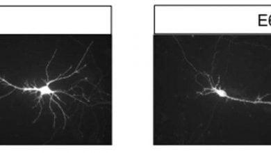 Photo of ژن مرتبط با اوتیسم، رشد طبیعی نورونها را مختل میکند