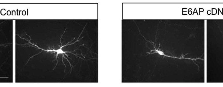 ژن مرتبط با اوتیسم، رشد طبیعی نورونها را مختل میکند - اخبار زیست فناوری