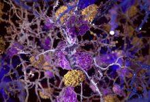 نقش احتمالی سلولهای ایمنی مغز در ابتلا به آلزایمر - اخبار زیست فناوری