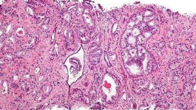Photo of یافتن ژن مرتبط با سرطان پروستات کشنده