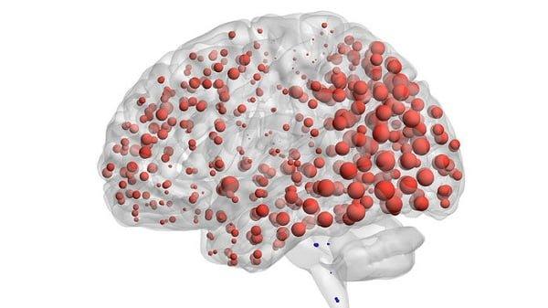 گسترش پروتئین آلزایمر همانند یک عفونت!-زیست فن