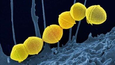 Photo of یک راه مبارزه با مقاومت انتی بیوتیکی، درمان های جایگزین برای عفونت های خفیف