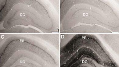 Photo of بازسازی ژن های سالم در موش صحرایی
