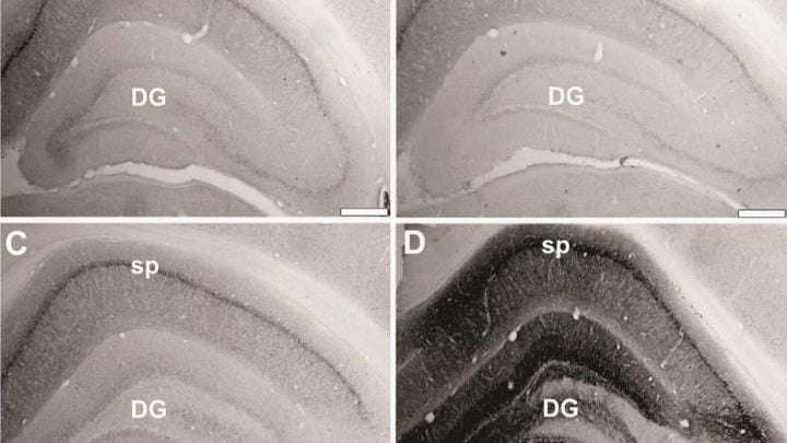 بازسازی ژن های سالم در موش صحرایی_اخبار زیست فناوری