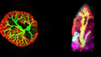 Photo of تولید ساختارهای کلیوی جنینی با استفاده از سلول های بنیادی پلورپوپتوس