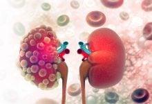 Photo of روش جدید سلولی برای کنترل پیشرفت بیماری مزمن کلیه است