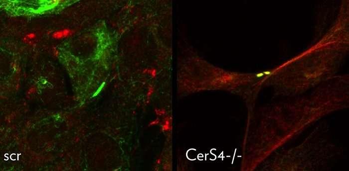 ریزش مو چه چیزی را در مورد متاستاز سرطان به ما آموزش می دهد؟_اخبار زیست فناوری