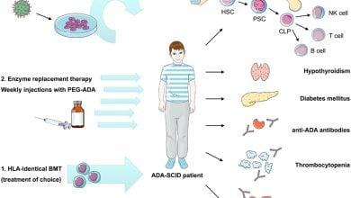 Photo of تشخیص زود هنگام: یک راهنما برای بیماری های شدید همراه با کمبود ایمنی (SCID)