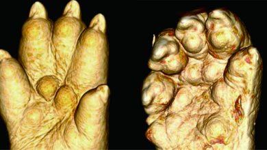 Photo of مبادله ی ژنتیکی بیان فیزیکی را تغییر می دهد