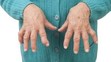 Photo of کمک به درمان آرتریت با مطالعه بر روی بیان ژن