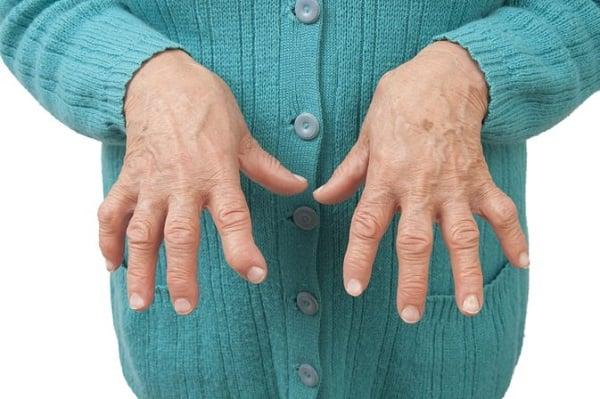کمک به درمان آرتریت با مطالعه بر روی بیان ژن - اخبار زیست فناوری