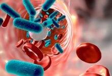 Photo of شبیهسازی سیستم ایمنی نیاز به درمانهای چندگانه برای بیماری sepsis را ضروری میسازد
