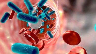 شبیهسازی سیستم ایمنی نیاز به درمانهای چندگانه برای بیماری sepsis را ضروری میسازد