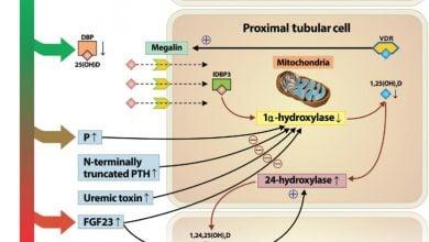 Photo of Metabolites altered in chronic kidney disease