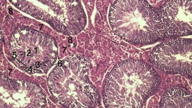 Photo of Drug found that induces apoptosis in myofibroblasts reducing fibrosis in scleroderma