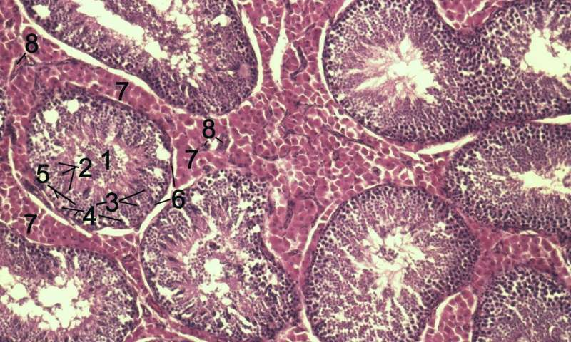 Drug found that induces apoptosis in myofibroblasts reducing fibrosis in scleroderma
