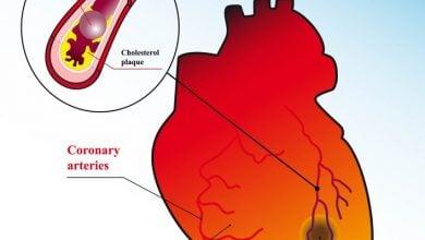 Photo of The immune response to heart attacks