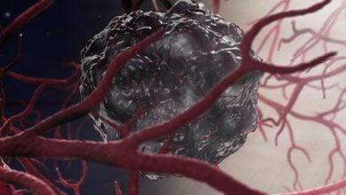 Photo of Metastasizing Cancer Cells Prefer Denser Collagen