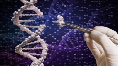 Photo of Sangamo Genome Editing Trial, Assessing MPS II Candidate, Treats First Patient