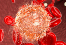 New CAR T-Cell Therapy Shows Promise in Trial for Leukemia