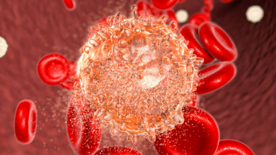 Photo of New CAR T-Cell Therapy Shows Promise in Trial for Leukemia