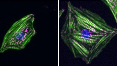 Photo of احساس سختی سلولهای قلب با اندازه گیری همزمان نیروهای انقباض و استراحت