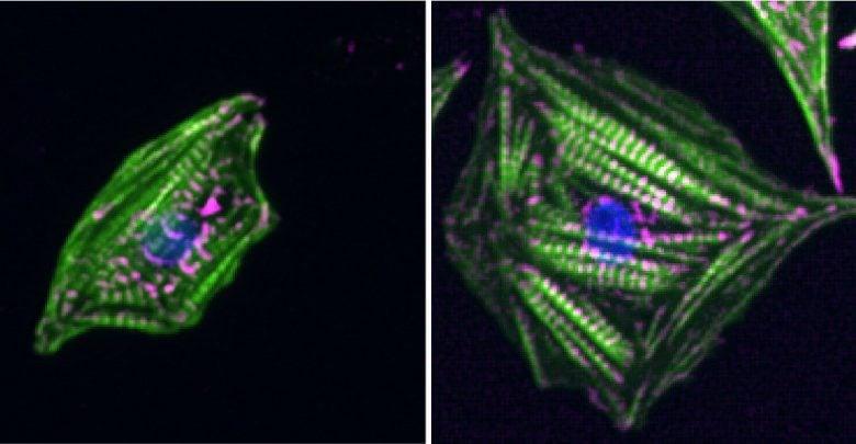 احساس سختی سلولهای قلب با اندازه گیری همزمان نیروهای انقباض و استراحت - اخبار زیست فناوری