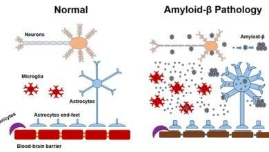 Photo of انتقال پروتئین آمیلوئید بتا از طریق جراحی اعصاب!