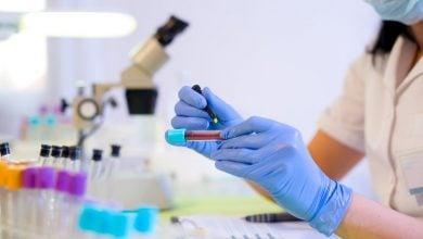 غلبه محققان بر مانع درمان سلولهای بنیادی در آینده - اخبار زیست فناوری